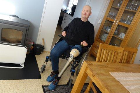 DET NYE BEINET: Stein Wiggo Olsen tar imot iFinnmark hjemme med et lurt smil, og viser fram hans nye «ben»  laget av glassfiber. Det er også en slags computer i kneet, som registerer hvordan han beveger seg, forteller Olsen.