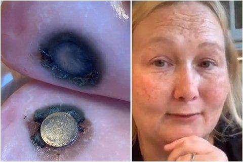 SKREMT: Småbarnsmor Kristin Hanstad gjennomførte sitt eget eksperiment for å se hvor mye skade et batteri kan gjøre. Resultatet taler for seg selv.