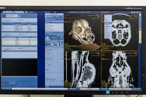 DETALJER: Bildene fra CT-maskinen gir detaljrike bilder.