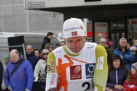 Niklas Dyrhaug falt og det gik også utover ansiktet. Han blødde over nesen.
