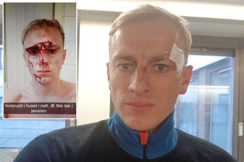 SLÅTT TIL BLODS: Trygve Digre Berg fikk kuttskader etter slag i hode med jernstang. Montasje.