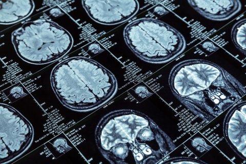ALZHEIMER: Mellom 80.000 og 100.000 lever med demens i Norge, og Alzheimers sykdom er den vanligste formen for demens. Sykdommen utvikler seg over mange år, og fører til tap av hjerneceller. Illustrasjon.