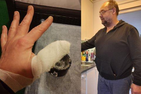 Slik så fingeren ut etter besøket på helsesenteret.