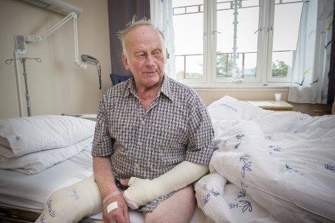 Mørbanket: Arne Finsrud fortalte i retten at han fortsatt tenker på den dramatiske ransnatta når han går til sengs på kveldene. Bildet er fra han var innlagt på Kongsvinger sjukehus. Nå har dommen falt. Foto: Jens Haugen