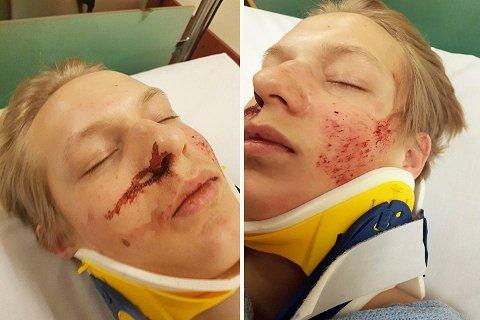 Håkon Gravningen Johannessen (17) landet rett på ansiktet etter hopp i Funkelia, men kom ganske greit ut av det - tross alt. Han knakk kragebeinet, fikk blødning i hodet, hjernerystelse, slag på lungene og tommelbrudd.