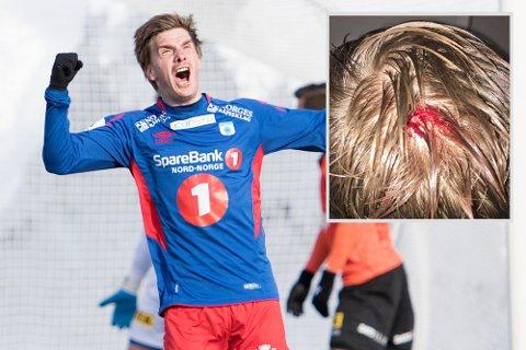 Vanligvis ser vi Vegard Lysvoll juble for scoringer. Det gjorde han ikke onsdag - for slik så hodet hans ut etter et møte med Sandnes Ulfs Saku Sahlgren.