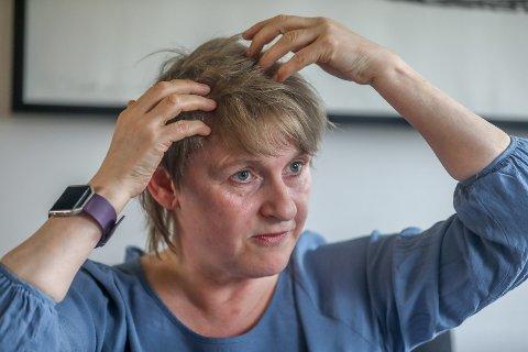 KRITISK: Melissa Birkeland (51) ble rammet av en akutt livstruende blødning i hodet, og i flere uker var det kritisk for henne. Foto: Yngve Olsen