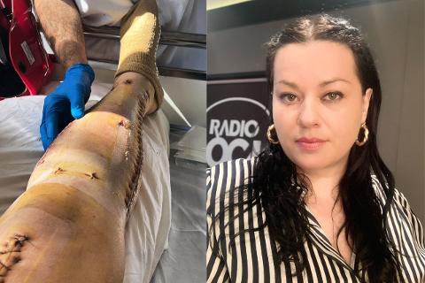ULYKKE: Suzanne Aabel skulle bare hjem fra jobb og lage fiskeboller til sønnen da hun havnet i en stygg elsparkesykkelulykke forrige måned.