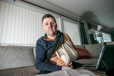 OPERERT: Karl Alberth Hansen reagerer på at han ikke fikk komme inn på legevakten i helgen. Han fikk senere konstatert brudd i hånden, og ble operert ved UNN.