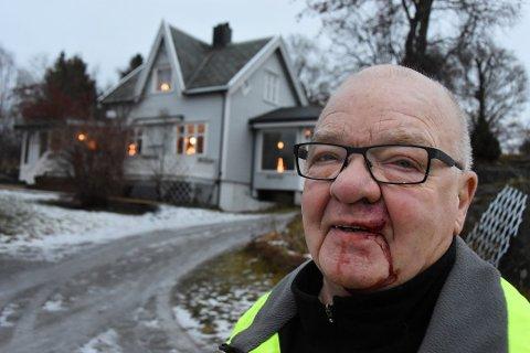 Slik så Bjarne Nystad ut etter det ublide møtet med elgen. Foto: Øyvind A. Olsen