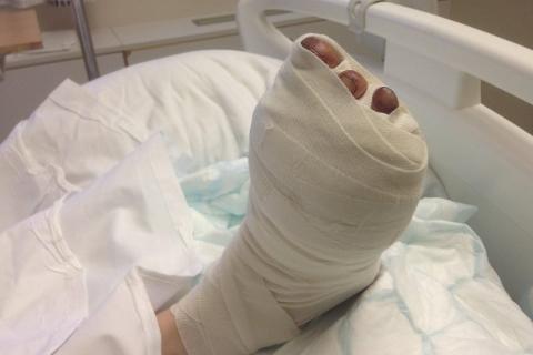 Grov vold: En av de fornærmede fikk tre tær skadd etter at den tiltalte mannen gikk løs på dem med en hagesaks.