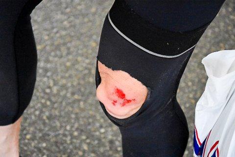 Bjørn Einar Nessengmo fra Rana Sykkelklubb måtte bryte Midnattsolrittet i Bodø og Salten på grunn av skade.