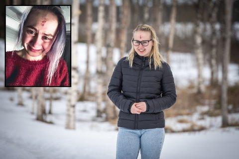 Celine Skotvedt Kallevig (23) slet med uforklarlige kramper og anfall - her fra Jessehim hvor hun bor. Bildet i venstre hjørne er fra Celines Instagramkonto.