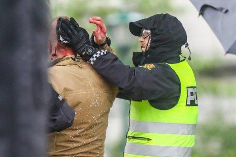 Sian-leder Lars Thorsen geleides blødende bort fra podiet.