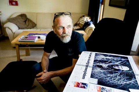 I 2014 fikk Gøran Stensrud diagnosen aggressiv Alzheimers sykdom. RB besøkte han flere ganger på Pålsetunet bo og servicesenter i Fetsund. Bildet er fra 2017. Sent fredag kveld døde han, 63 år gammel.