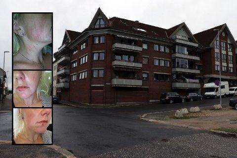 Slik så 35 år gamle Lise-Marie Geirmo ut etter at hun natt til søndag ble overfalt og utsatt for vold i krysset Sverres gate/Oskars gate i Sarpsborg sentrum.