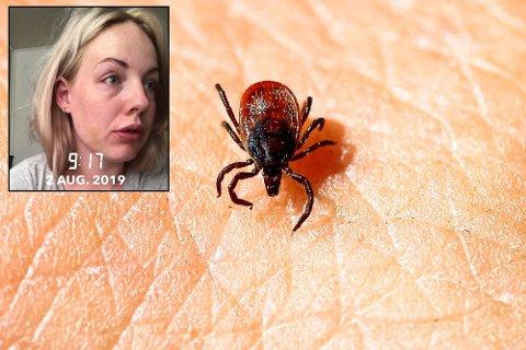 BLÅMERKET: – Blåmerket dukket bare opp uten noe skade skjedd, forteller Rebecca Lindmo (26) fra Trøgstad. Foto: Erlend Aas / NTB scanpix
