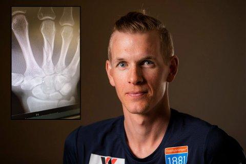 NEDTUR: Magnus Krog har fått konstatert brudd i det høyre håndleddet (røntgenbilde innfelt), noe som gjør at sesongen er over for telemarkingen.