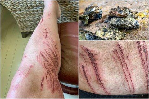 STYGGE MERKER: Morten Tonset skulle bare ta seg en dukkert på pinseaften, men etterpå var han full av sår.