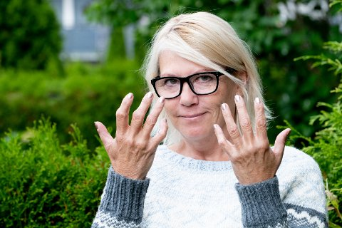 LEDDGIKT: Lisbeth Lyngra forteller at hun ofte pleier å skjule hendene sine.