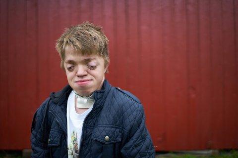 Tommy-André Fossli Hauge ble født med et av verdens sjeldneste syndromer, Pfeiffer syndrom. Han har nå flyttet til Vuku i Verdal.