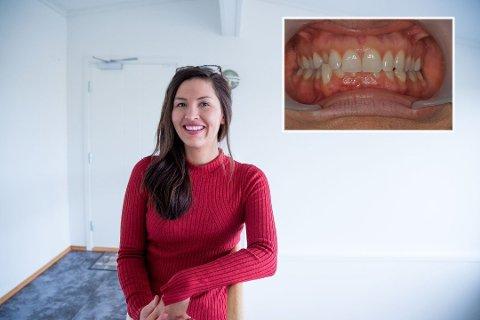 VILLE IKKE SMILE: Cristina (28) hadde så skjeve tenner at hun ikke ville smile. Nå er det blitt mer naturlig å smile for kvinnen.