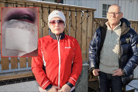 Det lille bildet viser hvordan øyet til Maria Enstad så ut etter overfallet. Hun og Svein Paulsen venter etter ti måneder fortsatt på svar fra politiet.
