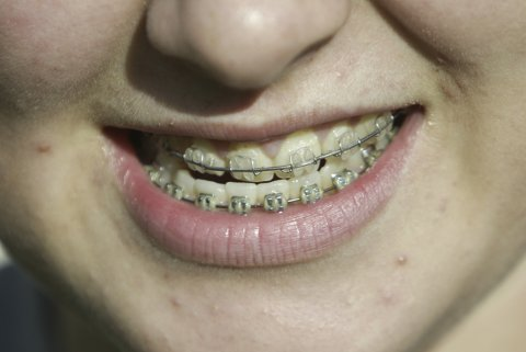 Færre norske barn skal få tannregulering fremover.