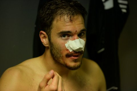 Fjerde gang: Benjamin Omerovic brakk nesa for fjerde gang i karrieren.