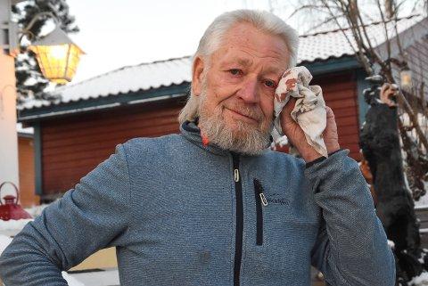 BLODIG OPPLEVELSE: Svein Håtveit tørker blodet som sildrer fra øyekroken to ganger om dagen. Han hadde håpet å få konsultasjon og behandling litt raskere.