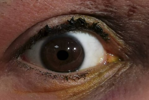 En mann fikk lettere skader fra fyrverkeri natt til onsdag.