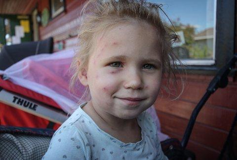 STIKK: Tuneflua har stukket Maja Elise Hauge (3) i hele ansiktet.