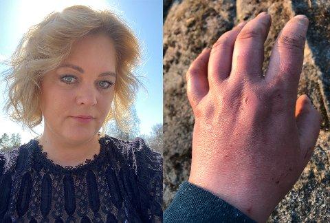 BLODFORGIFTNING: Trine Rishaug Lium fikk en flis i fingeren. Det endte med blodforgiftning og sykehusopphold.