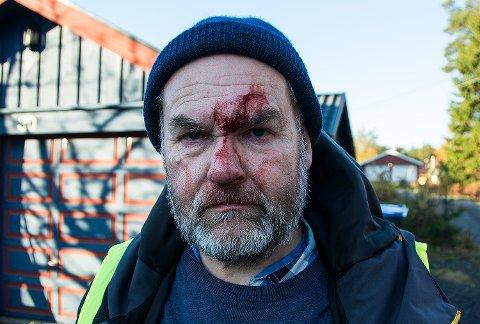 Guttorm Eskild Nilsen fikk et blodig sår i panna, og slo nesa og håndleddet i velten, men fikk ingen alvorlige skader.