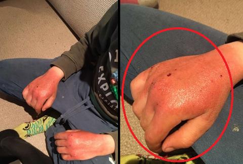 SÅRE HENDER: Røde og såre hender har blitt et stort problem i barnehagene og skolene i Indre Østfold. Slik kom en fireåring hjem fra barnehagen tirsdag. Foto: privat