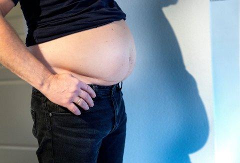 FEDME: Verdensbankens oversikt viser at Norge ligger blant landene med høyest grad av overvekt. Nå har forskere publisert en studie som gir håp i behandlingen av fedme og overvekt. Foto: NTB (NTB scanpix)