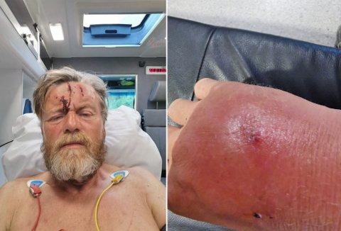 KOLLAPSET: Cato Thunes har gått Norge på langs. Underveis kollapset han og ble hentet med ambulanse.