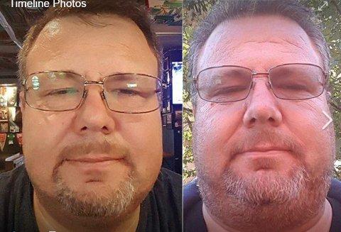 """FORVANDLINGEN: - Veldig positiv og fin """"bivirkning"""" av sykdommen min. Dag 118 uten alkohol  til venstre, og dag 5 uten alkohol til høyre. 148 kg vs 137 kg. 112 dager uten alkohol er det eneste som skiller mannen på bildene. Jeg syns det ser ut som det funker, skriver Erik Engen som postet disse to  bildene  på Facebookprofilen sin tidligere i vinter. FOTO: PRIVAT"""