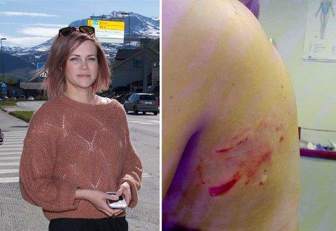 SKADET: Midt i Storslett sentrum ble småbarnsmoren Karita Moilanen angrepet av hunden. 32-åringen blødde fra flere sår i ryggen etter hendelsen. Foto: Privat/Ola Solvang