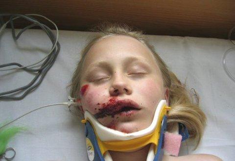 Foreldrene fikk nærmest sjokk da de fant Tyra Lovise Edvardsen ved utkjørselen til fylkesvei 177 en sommerdag i 2008. Jenta, som den gangen var ti år, hadde kollidert med en bil på sykkel. Ambulansepersonellet som ankom stedet uttalte at sykkelhjelmen kan ha reddet Tyras liv. Hun kom fra ulykken kraftig forslått og tre tenner fattigere.FOTO: PRIVAT