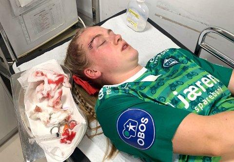 BLODIG: Ingeborg Lye Skretting er ferdig sydd.