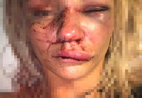 RETT ETTER OVERFALLET: Den unge kvinnen tok dette bildet av seg selv etter at hun våknet på sykehuset. Foto: Privat
