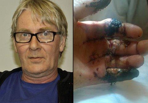SAGET FINGRENE: Da Gunnar Gunnarsson skulle kutte opp bjelker, havnet fingrene i sagen. Bildet til høyre er tatt like etter at fingrene ble sydd på igjen.