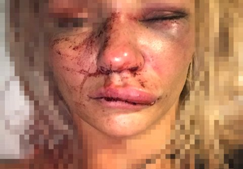 RETT ETTER OVERFALLET: Den unge kvinnen tok dette bildet av seg selv etter at hun våknet til liv på sykehuset.