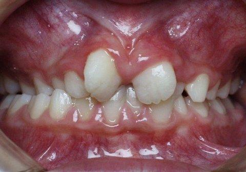 Mister støtte: Barn med forskjellig feilstillinger av tennene og bittavvik vil miste støtten til tannregulering hvis regjeringen vedtar forslaget om å fjerne denne støtteordningen.
