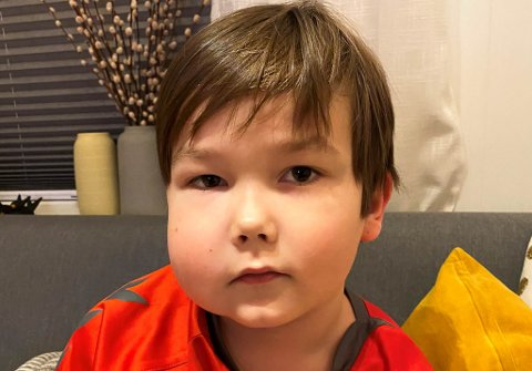 FIKK EN ALLERGISK REAKSJON I TILLEGG: Lásse Duommá Myrnes-Nystad (7) fra Kautokeino var veldig uheldig i sommer. Han fikk reinbrems, og han har også trolig fått en allergisk reaksjon på behandlingen mot parasitten.