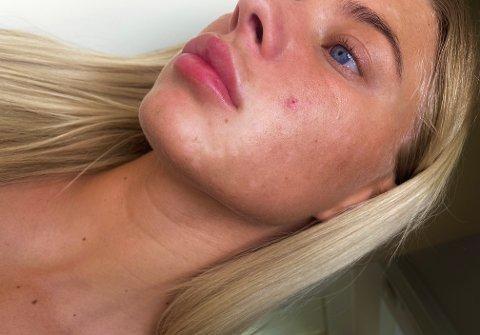 """Oda Gertz (22) er lei av å bli spurt om hva som er """"galt"""". Derfor valgte hun å dele historien sin med sine følgere på Instagram."""