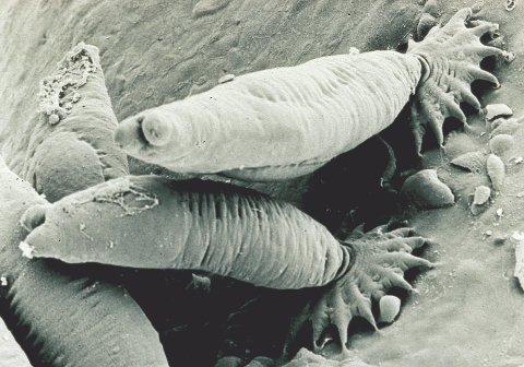PARASITT: Lakseparasitten Gyrodactylus salaris er en fremmed art i norske vassdrag.