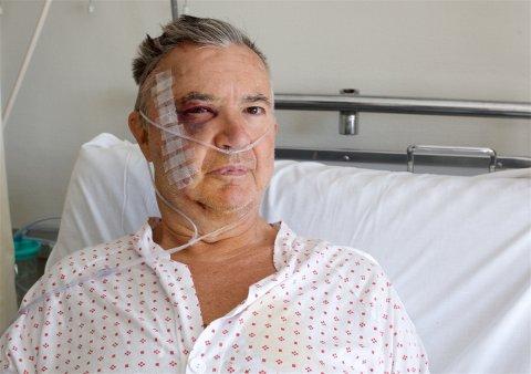 Kjell Eriksen overlevde den dramatiske ulykken. Han er kritisk til at luftambulansetjenesten er svekket som følge av den pågående krisen med