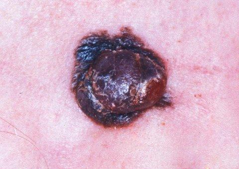 Eksempler på føflekkreft malignt melanom (Illustrasjonsfoto)